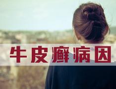 牛皮癣高发是什么原因?.jpg